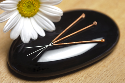 Try traditional Chinese acupuncture for pain relief.