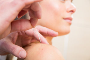 Is acupuncture during pregnancy safe?