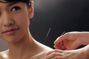 Bruising after acupuncture isn't common.