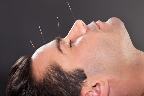 Can Acupuncture Cause Bruising?