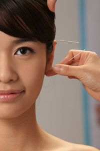 Obtain many benefits from ear acupuncture for addiction.
