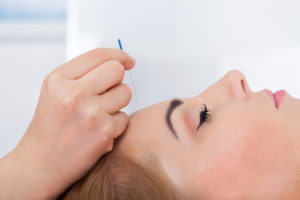 If you need migraine treatment, consider acupuncture.